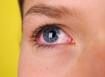 Does Thyroid Affect Your Eyes?