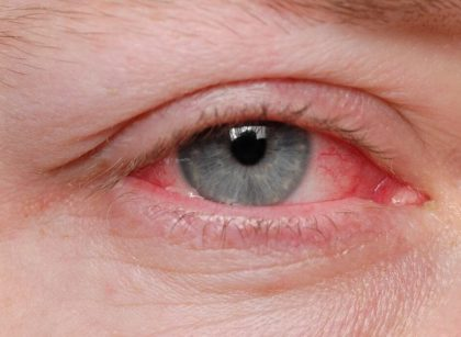 How To Prevent Conjunctivitis Or Pink Eye