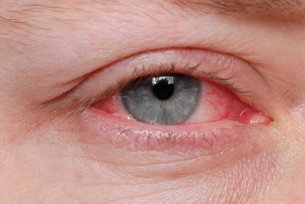 How To Prevent Conjunctivitis Or Pink Eye?
